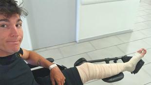 Aleix Espargaró muestra la pierna vendada.