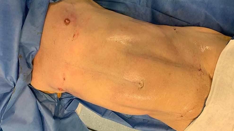 Pipi Estrada muestra su torso desnudo tras someterse a un operación...