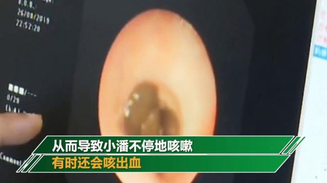 Resultado de imagen para Extraen una sanguijuela viva dentro de la garganta de un niño