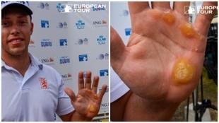 Koen Kouwenaar muestra su mano.
