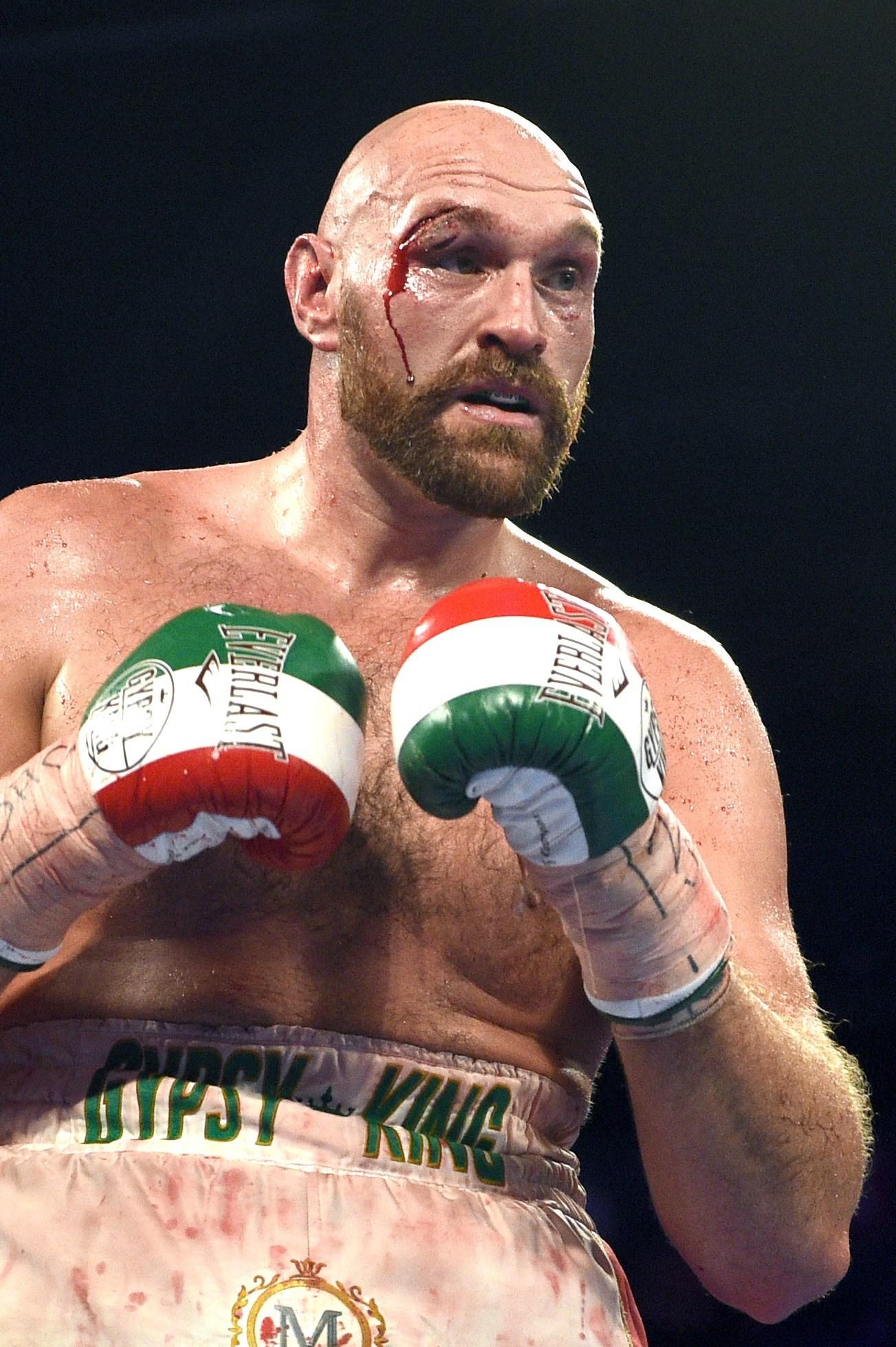 Tyson Fury con un corte en la ceja durante su pelea contra Otto Wallin