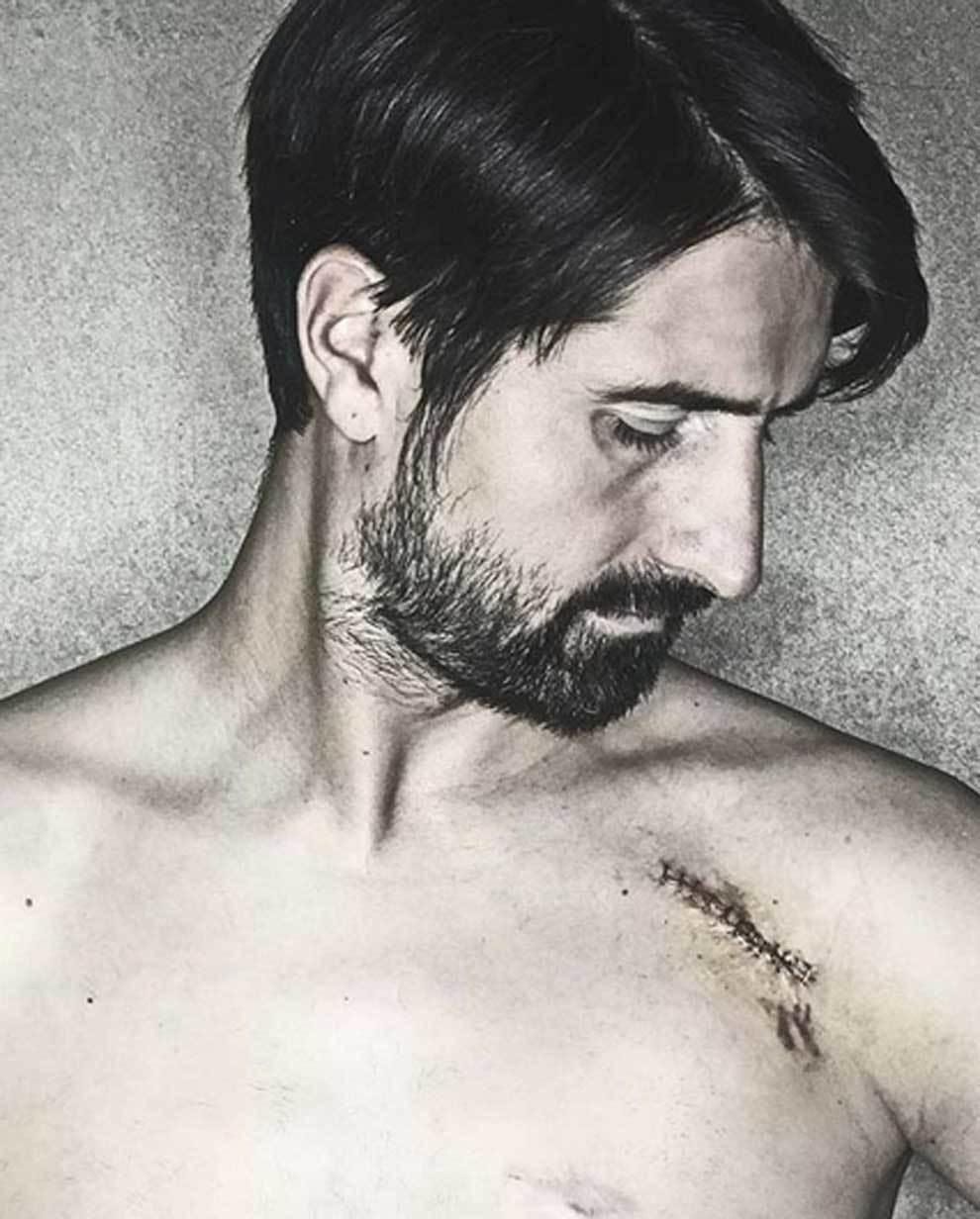 Rubén de la Red muestra su cicatriz en Instagram y escribe un emotivo...