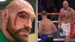 Tyson Fury sufrió una de las acciones más feas del boxeo... ¡en su corte de 47 puntos de sutura!