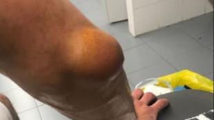 El estado del codo derecho de Sergio Llull tras jugar ante el Alba...