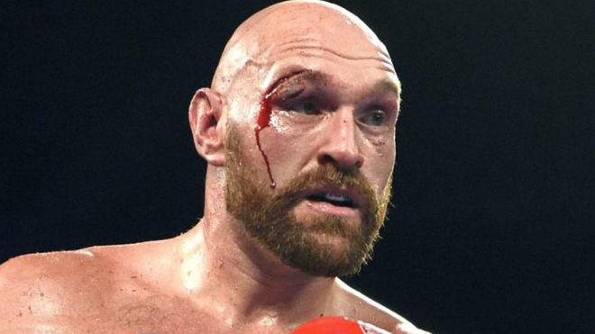 Tyson Fury sufrió dos importantes cortes contra Otto Wallin.