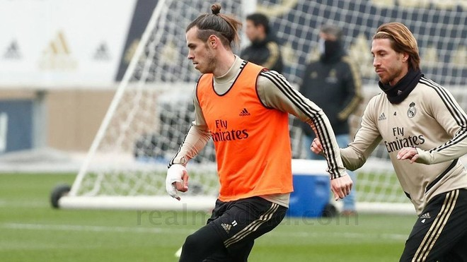 Bale is wearing a cast on his sprained little finger.