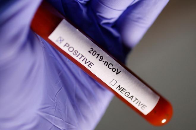 Coronavirus en España hoy | Noticias de última hora