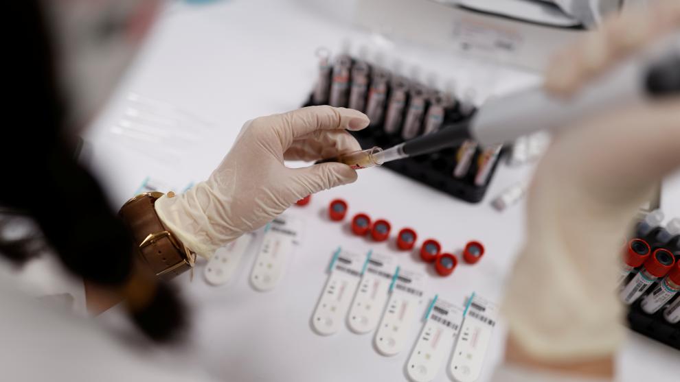 ¿A qué temperatura muere el coronavirus por completo?