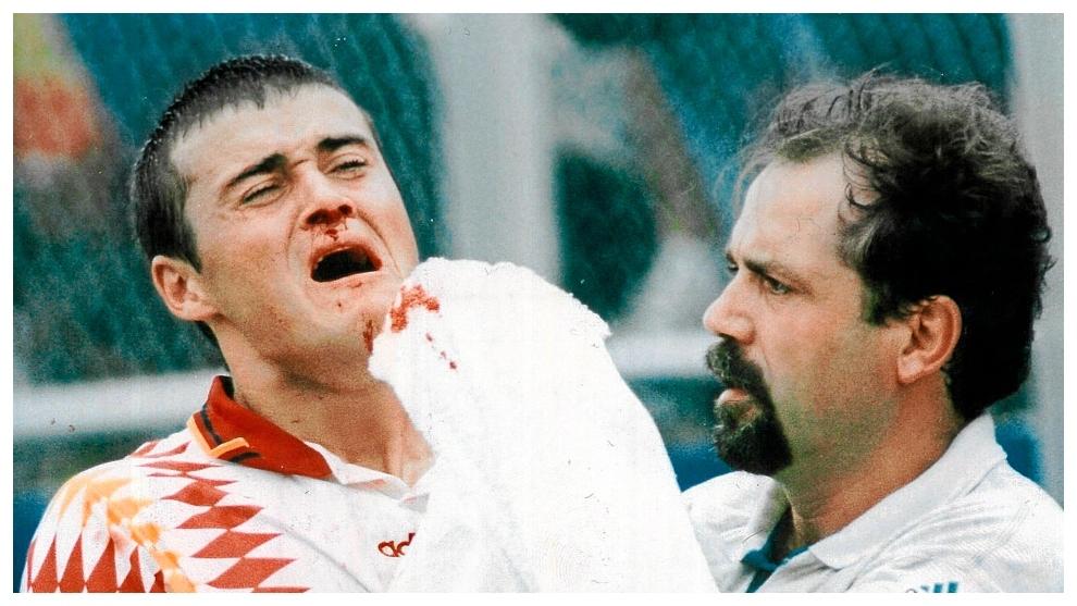 Luis Enrique, sangrando tras el codazo de Tassotti.