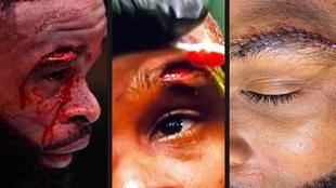 Tyron Woodley sufrió un corte en la ceja durante su combate contra...