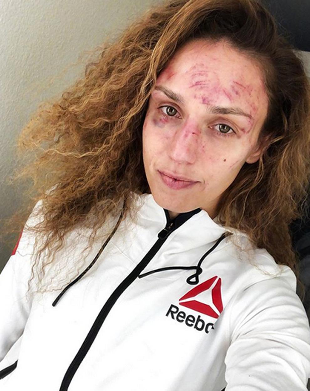 Así quedó la cara de Antonina 'La Pantera' Shevchenko tras su...