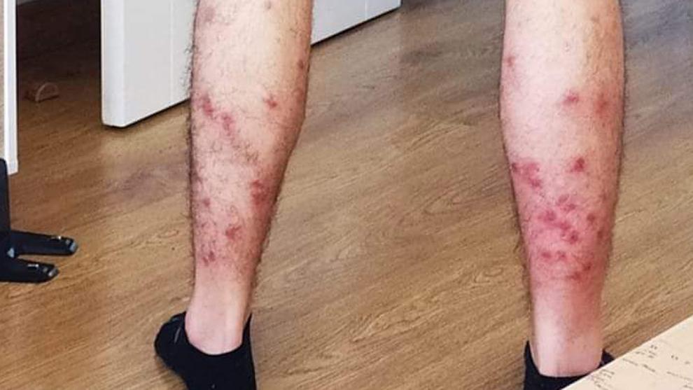 Un hombre sufre 45 picaduras de mosca negra jugando a pádel en Getafe y acaba en el hospital