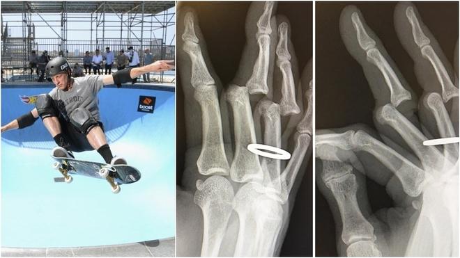 Tony Hawk y las radiografías de sus dedos rotos.
