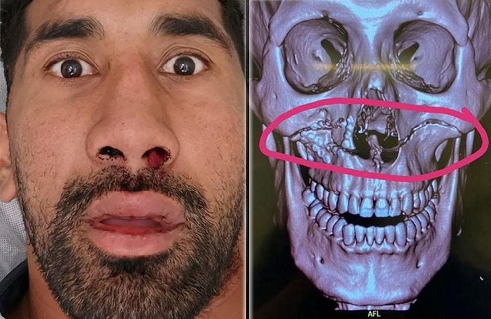 Sia Soliola (Canberra Raiders), comparte su fractura facial