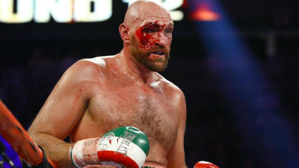 Tyson Fury manda dinero al hombre que curó su lesión ocular durante la pelea con Otto Wallin