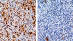 En la imagen, células del tumor cerebral (en azul) bajo tratamiento...