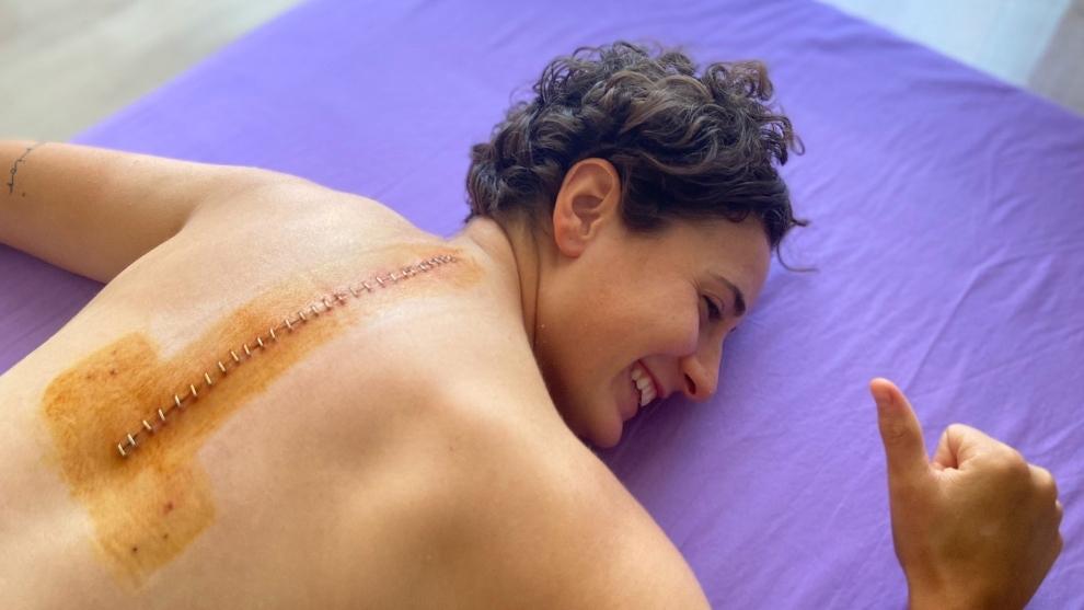 La espalda de Ana Carrasco tras la operación.