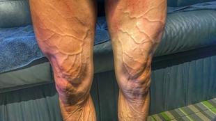 Las piernas de José Joaquín Rojas (Movistar) tras la octava etapa