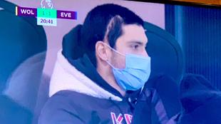 Raul Jimenez's scar from his horrific head injury