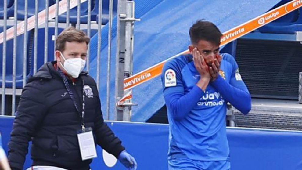 Pol Valentín abandona este domingo ensangrentado el Fernando Torres /