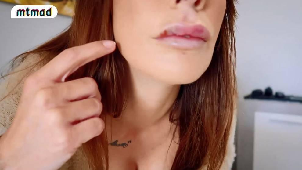 Así están, de momento, los labios de Fani Carbajo