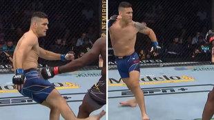 Primer combate UFC sin un puñetazo: ¡la fractura de pierna de Weidman es de taparse los ojos!