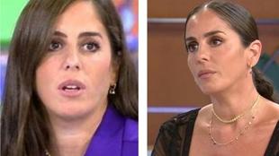 Anabel Pantoja - retoques esteticos - cirugia estetica