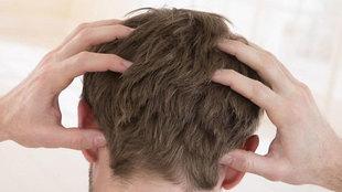 ¿Dermatitis seborreica o caspa? Cómo distinguirlas