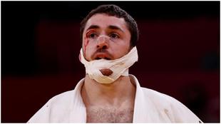 La frustración de Alberto Gaitero: eliminado y con la cara destrozada