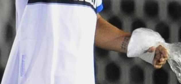 El estado de la mano de Ibrahimovic tras el partido