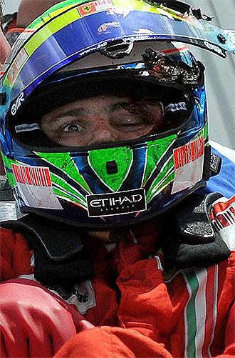 Felipe Massa, instantes después del accidente.