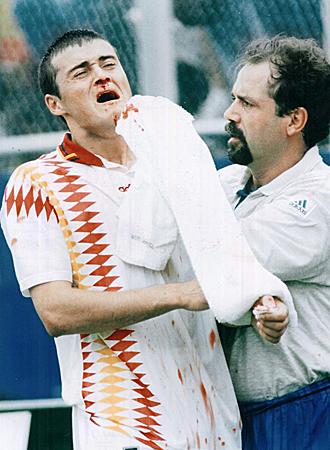 Luis Enrique es atendido despu�s del codazo de Tassotti que debi� signficar penalti y expulsi�n del zaguero italiano.