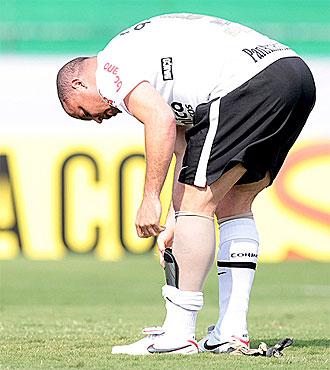Ronaldo muestra su media que le ayuda a combatir el problema de varices.