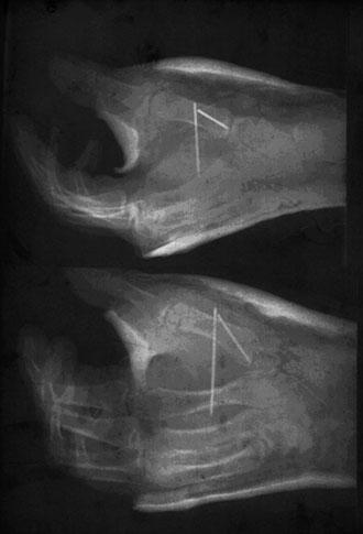 La mano de Pablo Navascu�s, con dos clavos, tras pasar por el quir�fano