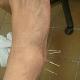 Perquis trata su tobillo con acupuntura