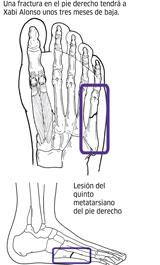 Xabi Alonso será operado hoy en Murcia