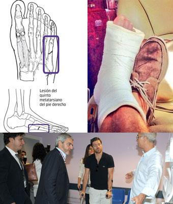 Xabi Alonso, operado con éxito