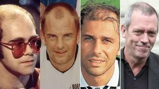 Actores, cantantes, deportistas... ¿Quién se ha hecho un trasplante de pelo?