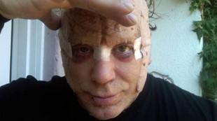 Famosos que se destrozaron la cara por culpa del bisturí