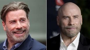 ¿Calvos? Actores, cantantes y deportistas que se han hecho trasplante de pelo
